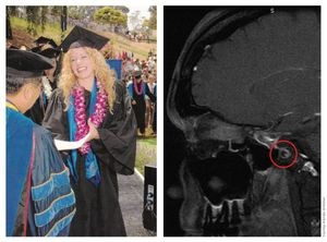 Jordan McMahon, 2005 (left) and clear MRI scan, 2013 (right)