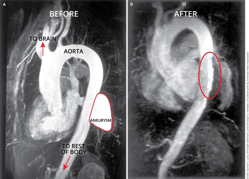 Aorta before (left) and after (right) survery