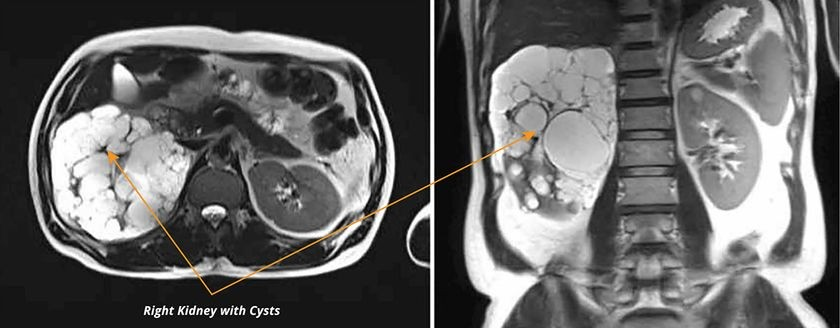 Kidney MRI, postoperative axial (left) and coronal (right) scans