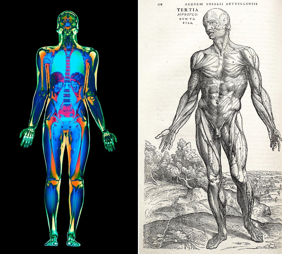 <strong>Left</strong>-MRI whole body scan <strong>Right</strong>-Andreas Vesalius, <em>Di humani corporis fabrica</em>, 1543