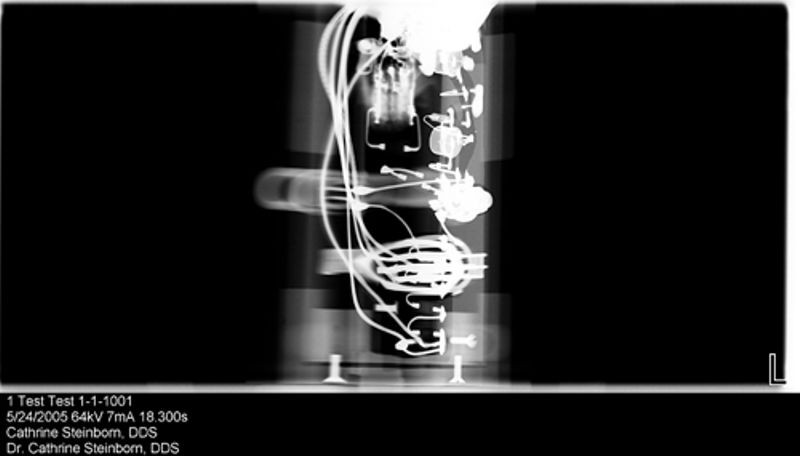 X-ray image of high-voltage power supply for light pen from DEC PDP-1